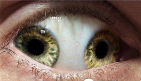 双瞳孔图片