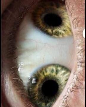 双瞳孔图片 历史上双瞳的人